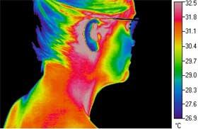 Termografia medicine e veterinaria microgeo for Camminare attraverso i piani doccia